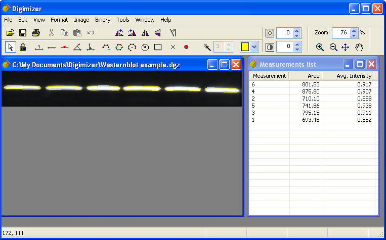 Digimizer 5.3.4 full